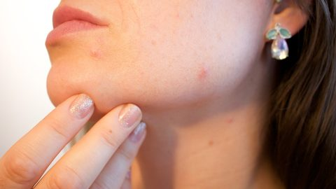 Acne, A Devastating Complication of PCOS