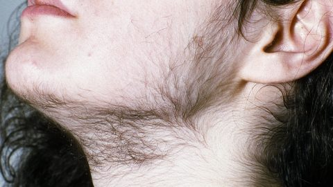 Hirsutism in Polycystic ovary syndrome